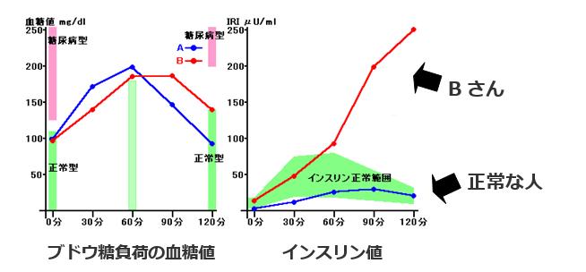 ブドウ糖負荷の血糖値、インスリン値のグラフ