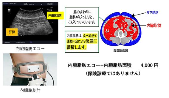 内臓脂肪検査